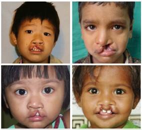 BSMI Bakal Gelar Operasi Bibir Sumbing Gratis