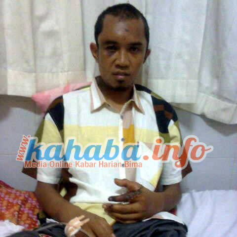 Kondisi terakhir Delian Lubis di RSUP Mataram.