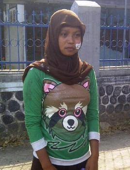 Seorang mahasiswi, Aidah yang mengalami luka dibagian pipinya diduga karena tindakan represif anggota kepolisian. Foto: AGUS