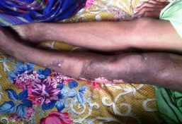 Kondisi kaki Yusuf yang sebelah kiri terlihat hangus diduga tersambar petir.