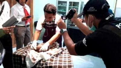 Dokter RSUD Bima saat otopsi tengkorak bayi. Foto: Bin