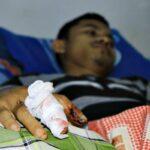 Mesin Batu Akik Meledak, Dua Warga Terluka