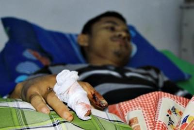 Afrin dengan tangan yang terluka saat dirawat di PKU Muhammadiyah Bima. Foto: Bin