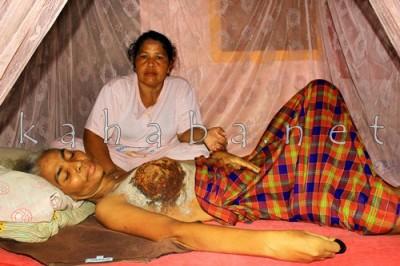 Kanker Payudara yang diderita Ramlah. Foto: Bin