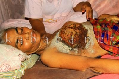 Ramlah terbaring lemah karena Kanker Payudara. Foto: Bin