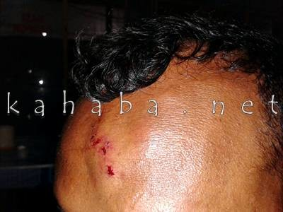 Kepala MK terluka dikeroyok Karyawan Barata. Foto: Noval