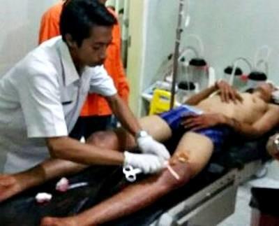 Pelaku curanmor saat dirawat di RSUD Bima