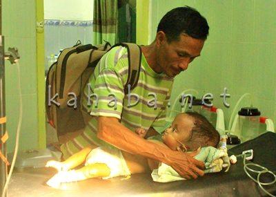 Abdullah menatap pilu anaknya yang idap Hydrocepalus. Foto: Ady
