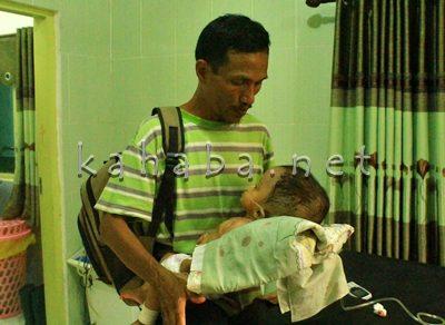 Abdullah saat menggendong anaknya yang idap Hydrocepalus. Foto: Ady