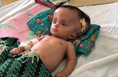 M. Wildan, pasien Hydrocepalus asal Bima saat dirawat di ruang ICU RSUP NTB. Foto: Rangga Babuju (Facebook)