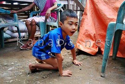 Kondisi Ardiansyah asal Lelamase. Foto: Bin