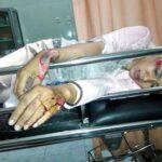 Wartawati Bima TV Dijambret, Sekujur Tubuh Terluka