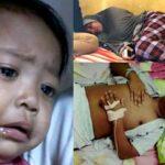 Derita Warga Ntori, Istri Diserang Tumor, Suami Lumpuh