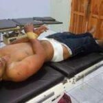 Pelaku Mutilasi Dibekuk, Polisi Lumpuhkan dengan Timah Panas