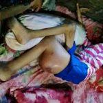 Setahun Terpuruk Sakit, Anak Yatim Ini Tak Mampu Berobat