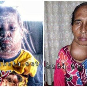 Ina Bodi dan Aisyah Dirujuk ke Denpasar, BCC Lakukan Pendampingan