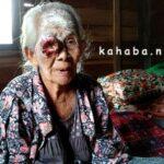 Tumor Mata, Tiap Hari Ina Mene Mengerang Sakit dan Panas