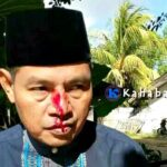Kades Kananga Dianiaya Oknum Anggota TNI