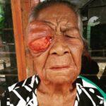 Lama Tak Tertangani, Mata Nenek Marlia Diserang Tumor Ganas