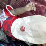 Lahir Tanpa Anus, Bayi di Desa Bre Butuh Biaya Operasi