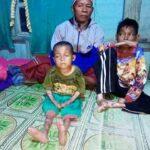 Tangan dan Kaki 2 Bocah Asal Desa Risa ini Melepuh, Ingin Berobat tak Ada Biaya