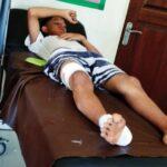 Anak-Anak di Jatibaru Diserang Anjing Rabies
