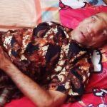 Idap Tumor Selama 20 Tahun, Kakek Yasin Butuh Bantuan