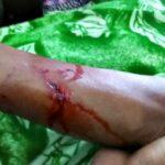 7 Warga di Wawo Diserang Anjing Diduga Terjangkit Rabies