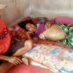 Idap Kanker Payudara, Asmah Butuh Biaya untuk Kesembuhan