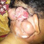 Kanker Gerogoti Kepala Amir, Pedagang di Amahami ini Belum Dapat Perhatian Pemkot Bima