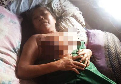 Didera Kanker Payudara, Hafsah Berharap Bantuan Pemerintah dan Dermawan