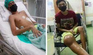 Alfian Berjuang Melawan Kanker Tulang, Saat Ini Butuh Uluran Tangan